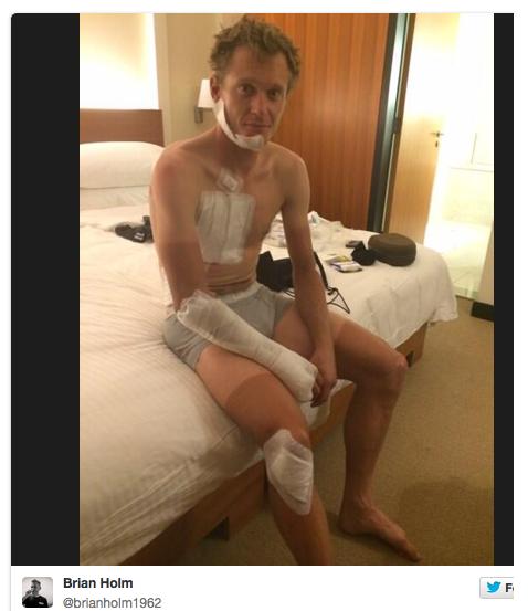 Matti Breschel after freak accident